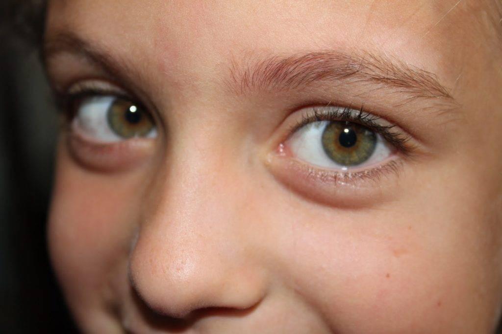 Болотный цвет глаз. от чего зависит цвет глаз человека?