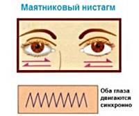 Горизонтальный нистагм