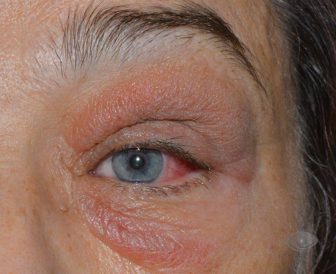 Грибковые заболевания глаз фото лечение симптомы причины