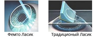 Выбираем метод коррекции зрения: супер ласик