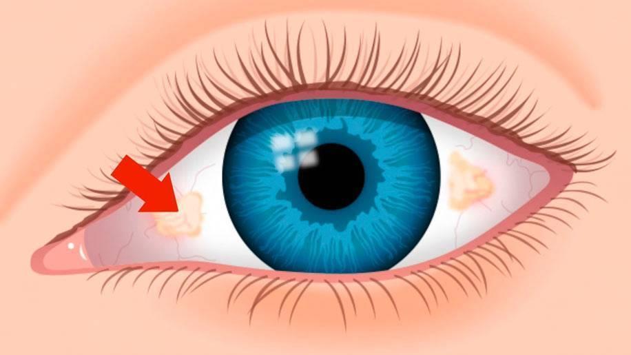 Пингвекула глаза: фото, что это такое, как выглядит заболевания на конъюнктиве