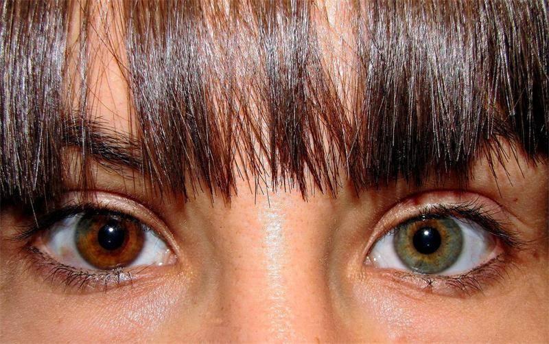 Гетерохромия глаз у человека