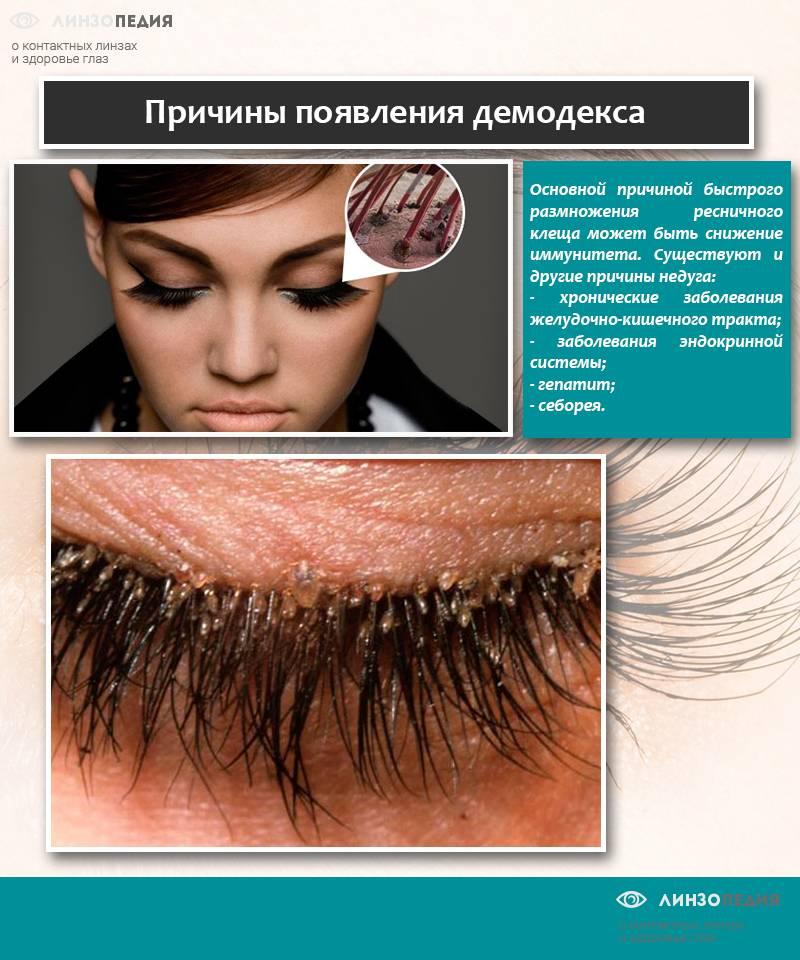 Демодекоз глаз: симптомы и лечение у человека