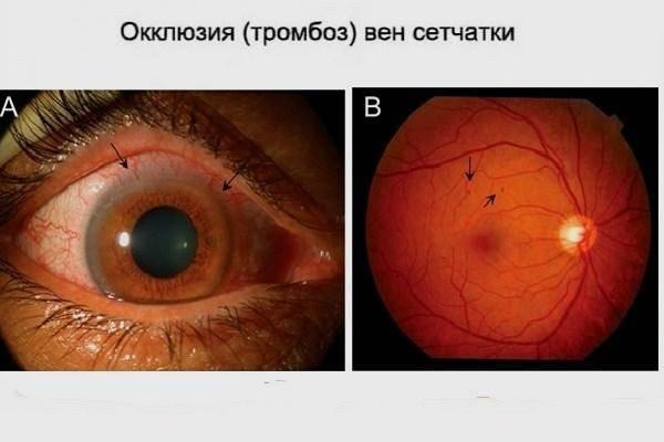 Туман в глазах: причины, лечение