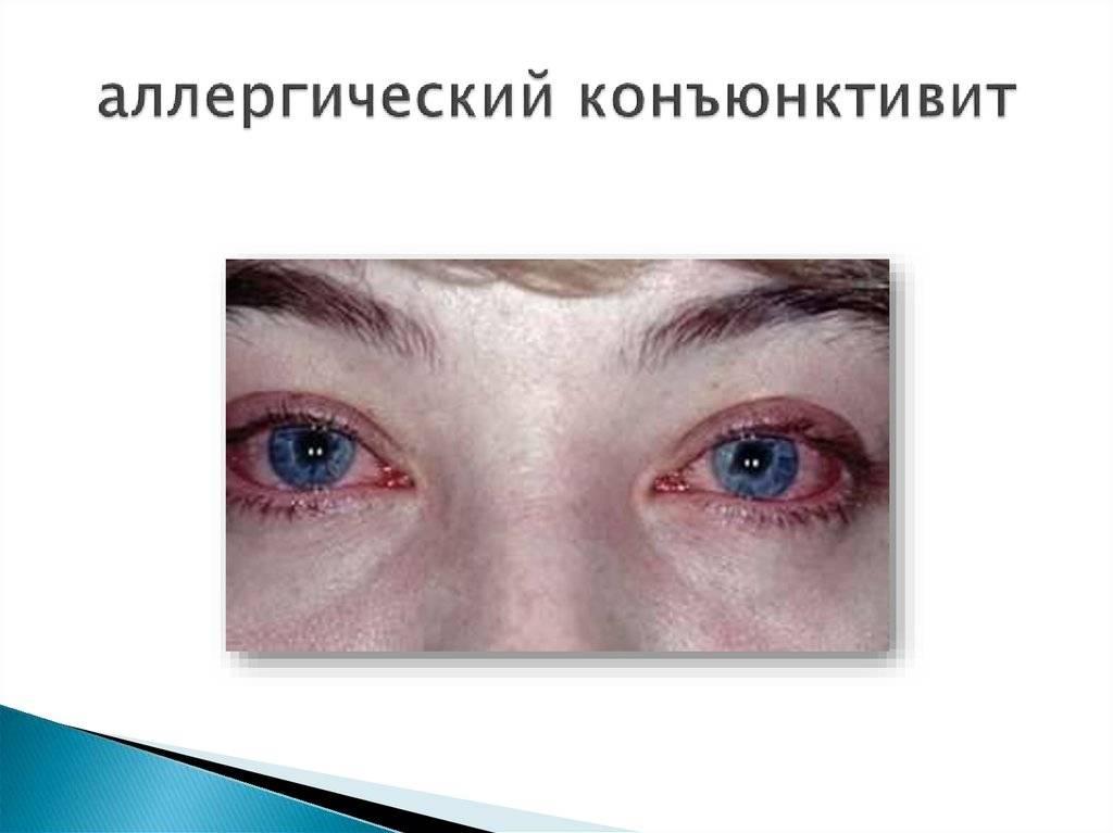 Аллергический конъюнктивит у детей: симптомы, виды, лечение (народные средства, капли для глаз) и прочие рекомендации + фото