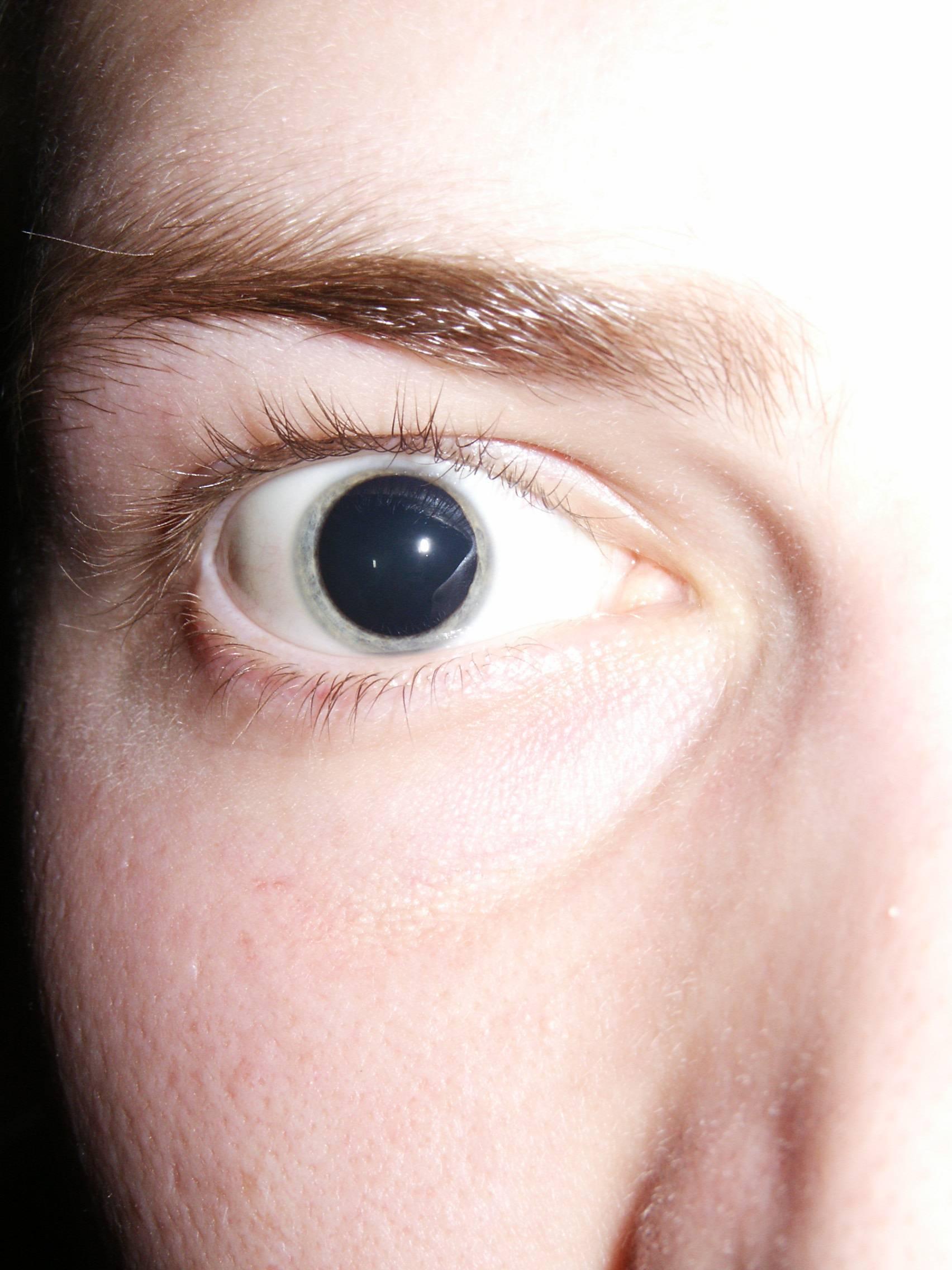 """Мидриаз: причины, симптомы, методы лечения - """"здоровое око"""""""
