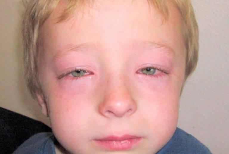 Причины появления глазной аллергии, ее симптомы и лечение
