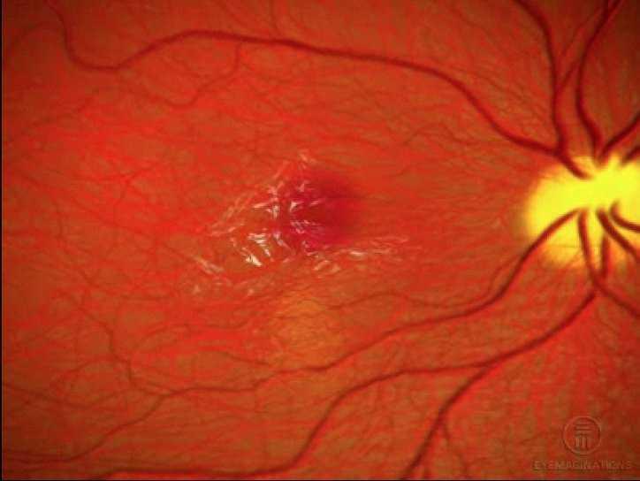 Методы терапии фиброза сетчатки глаза