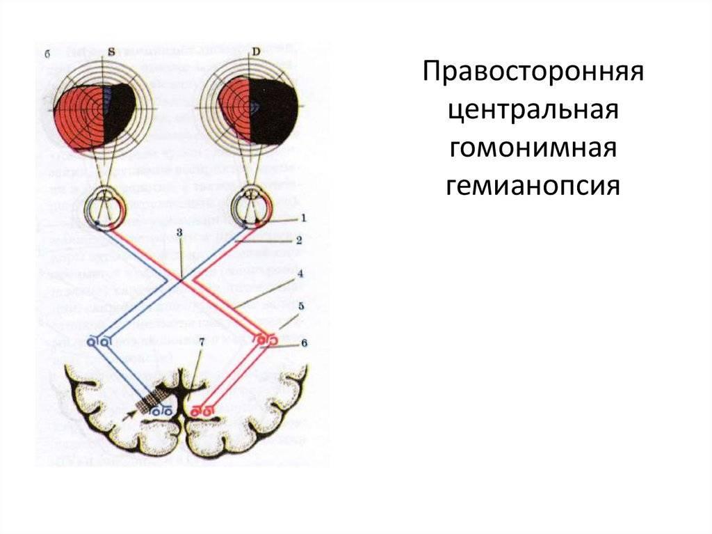 Гемианопсия: что это, гомонимная правосторонняя, битемпоральная при инсульте, квадратная левосторонняя, контралатеральная, верхнеквадрантная