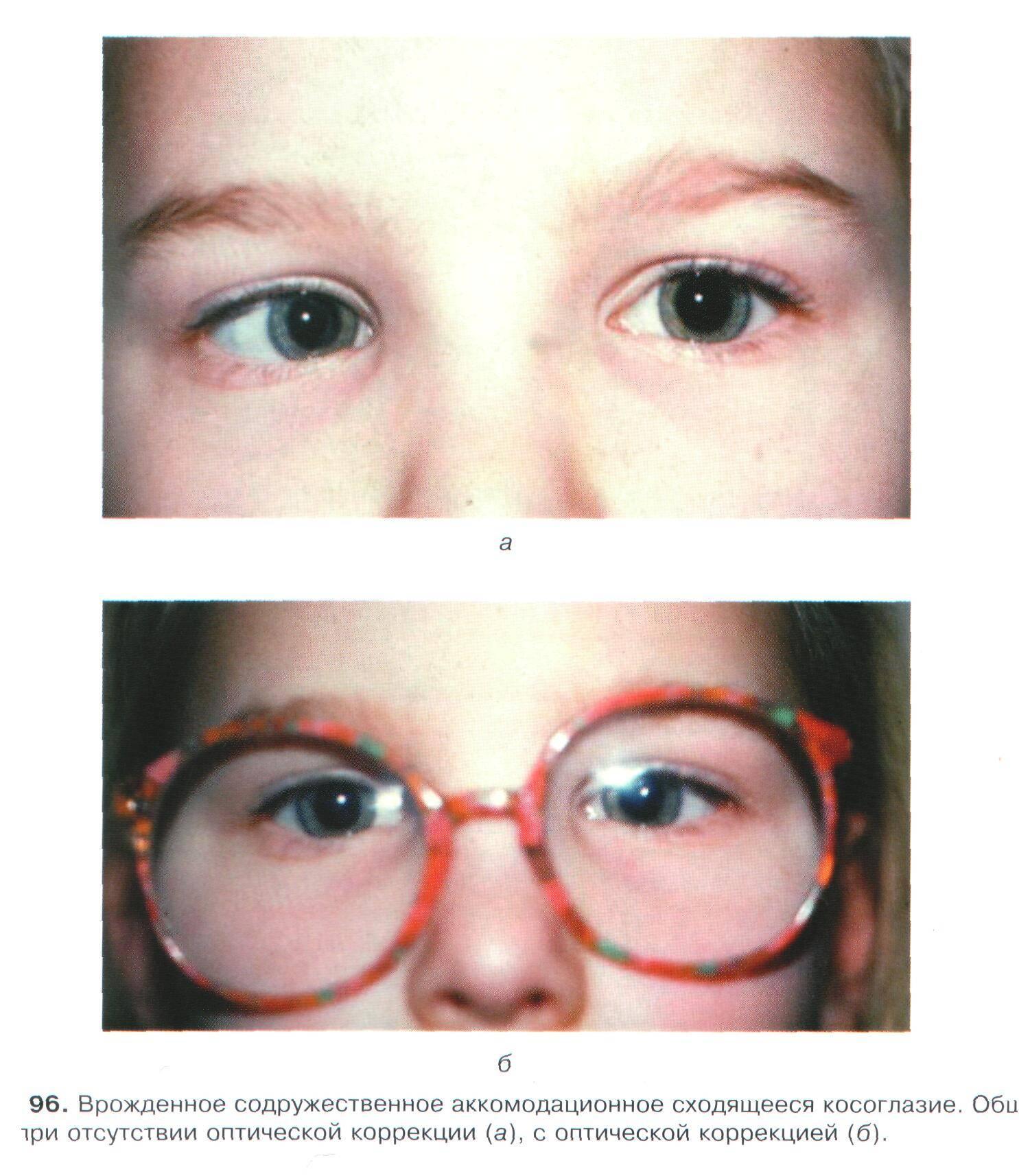 Операция на косоглазие - как проходит у детей и взрослых, последствия, отзывы