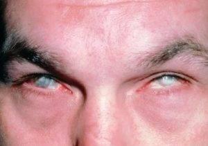 Химический ожог глаза: первая помощь, лечение