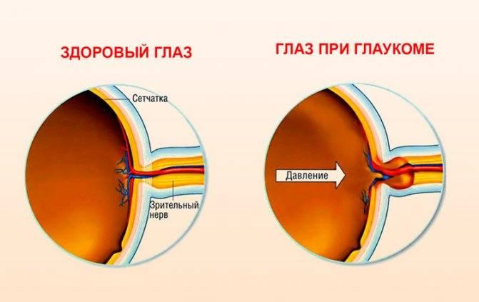 Что противопоказано делать при глаукоме
