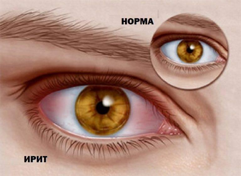 Ирит - что это, почему возникает воспаление радужной оболочки глаза
