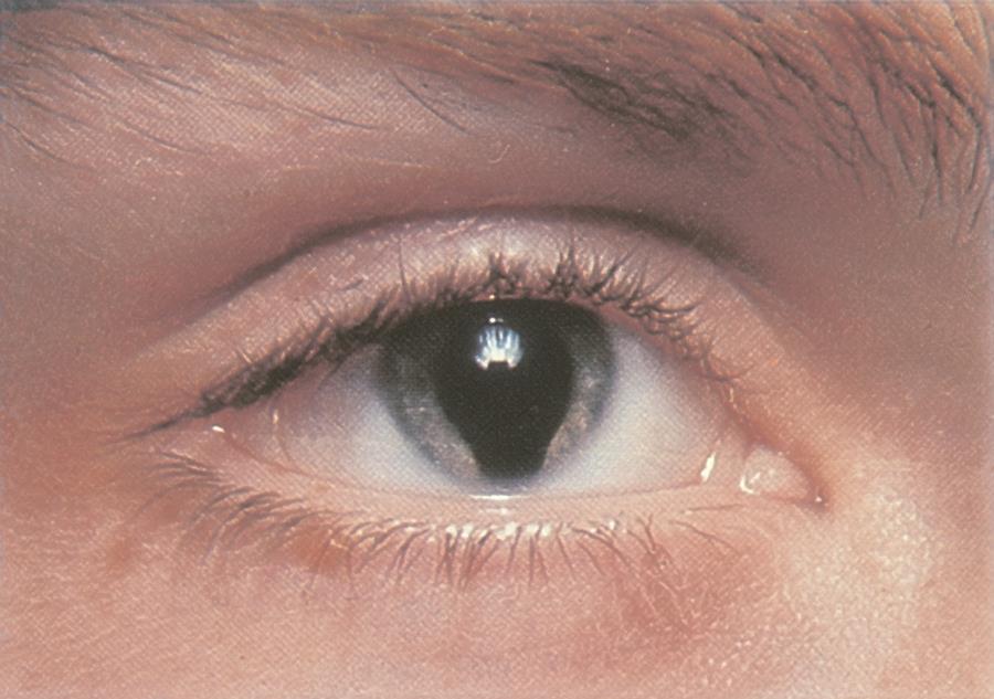 Колобома радужки глаза
