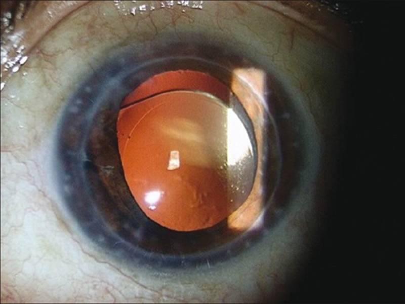 Операция по удалению катаракты: показания, ход, восстановление
