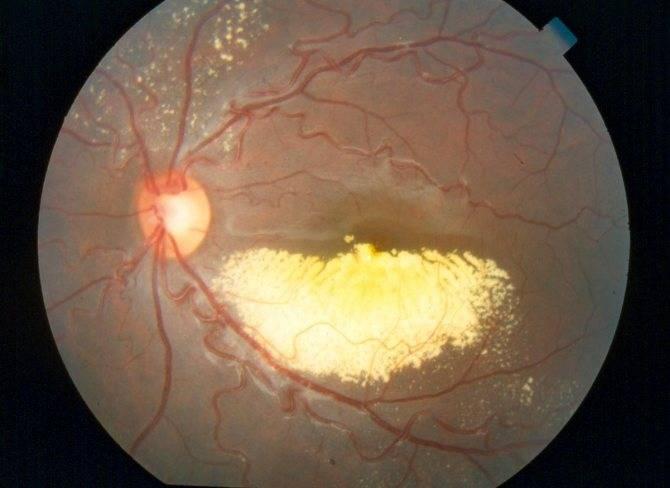 Фоновая ретинопатия и ретинальные сосудистые изменения: что это такое, лечение у взрослых и новорожденных детей