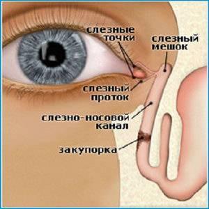 Дакриоцистит, лечение: как понять, что вылечили, узнать, вышла ли пробка, чем победить такой недуг, лечить его, если не прошел сам