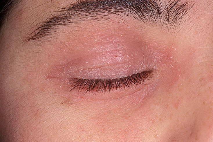 Шелушится кожа вокруг глаз: причины и что делать  — ruxa
