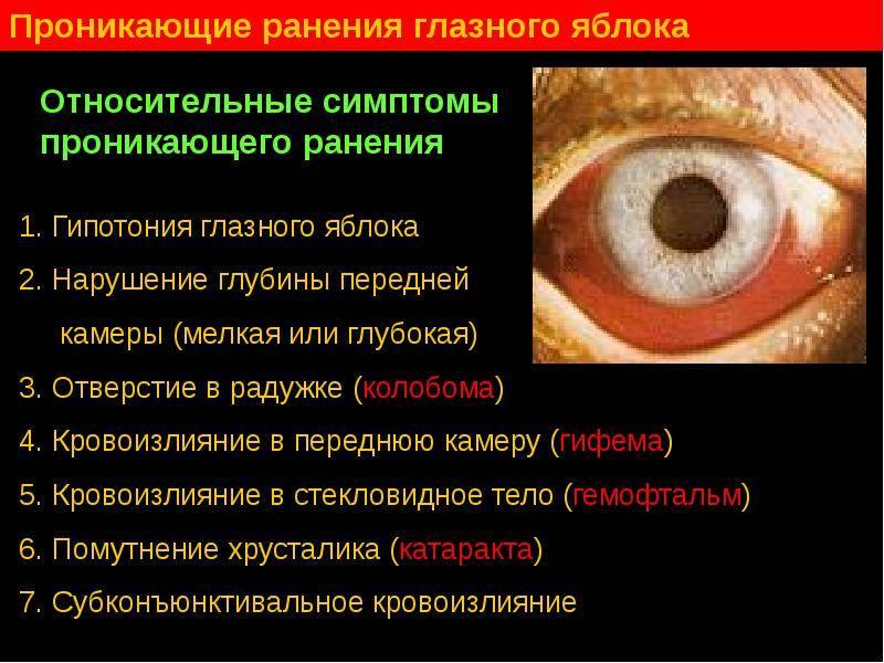 Травмы глаза: классификация и оказание первой помощи