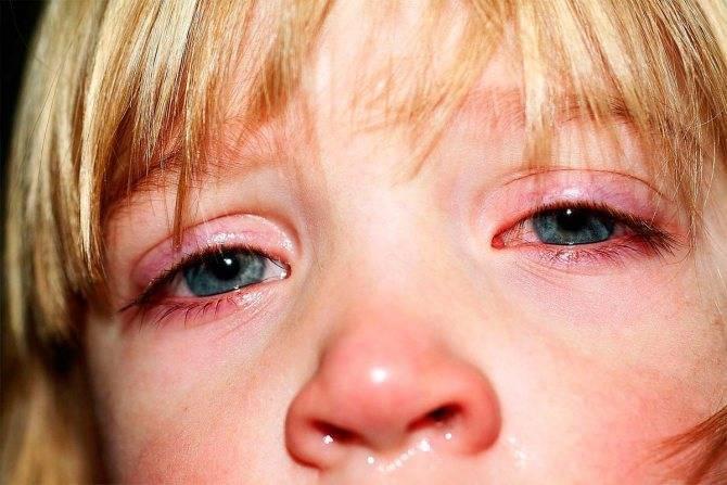 Бактериальный конъюнктивит у детей: симптомы и лечение
