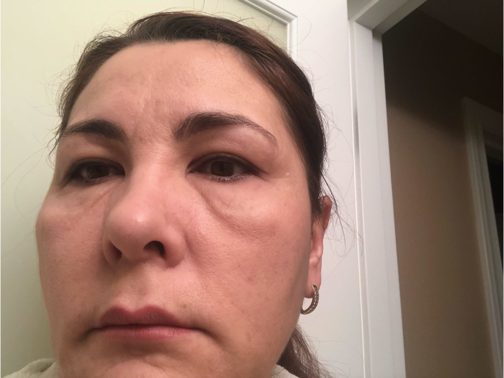 Малярные мешки под глазами: причины, как избавиться от суфов без операции, поможет ли массаж и липолитики, пластическая хирургия в решении проблемы