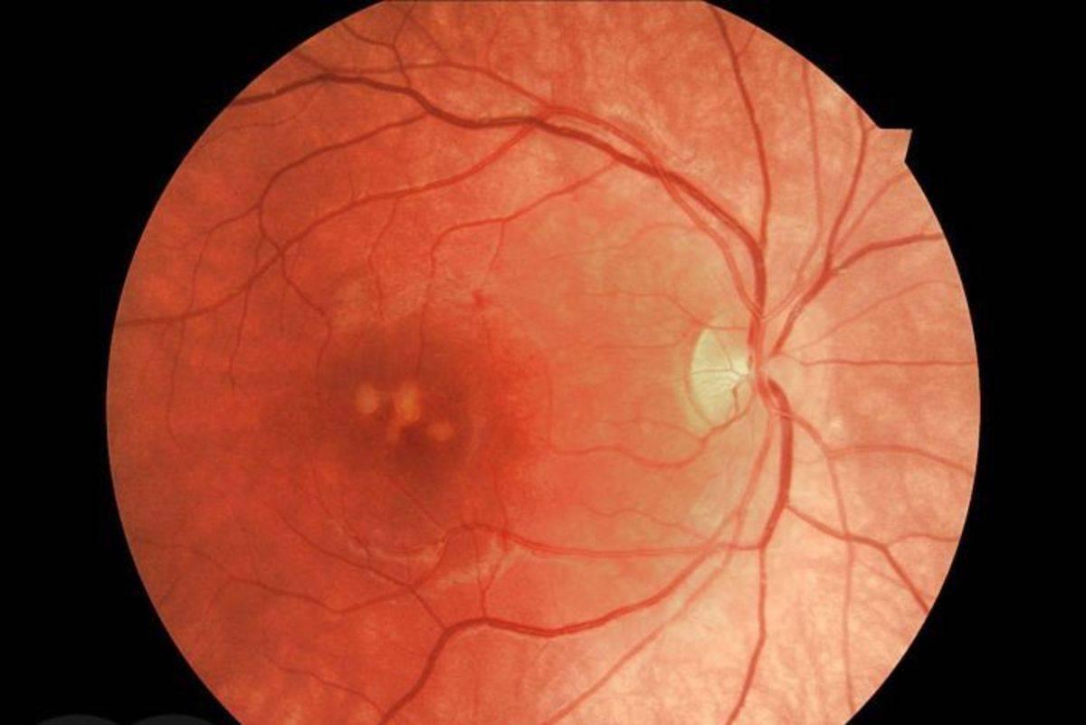 Фиброз сетчатки глаза: что это такое и как это лечится?