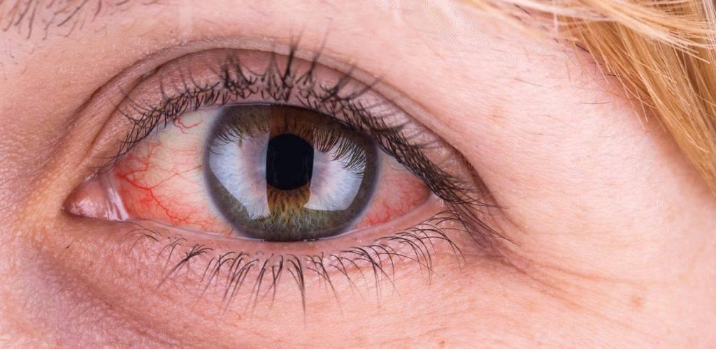 Из глаза течет прозрачная жидкость – лечение артроза и артрита, лечение подагры