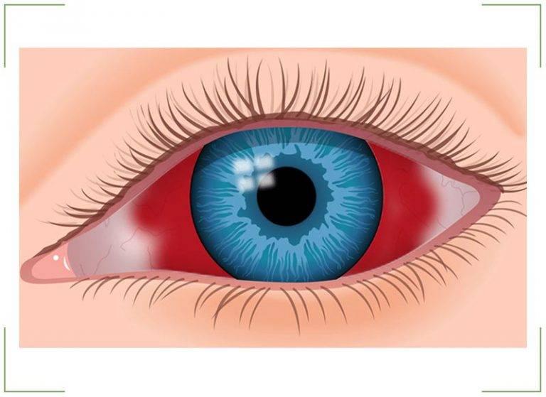 Гемофтальм или кровоизлияние в глаз, лечение, причины. профилактика гемофтальма.