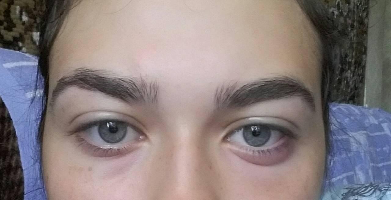 Опух глаз - нижнее веко болит и чешется, причины и что делать?