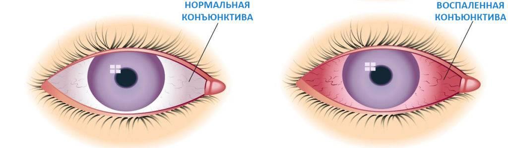 Конъюнктивальный мешок глаза: строение, функции, лечение