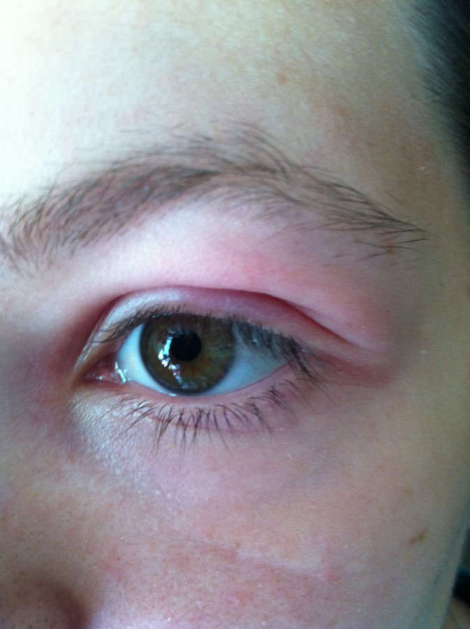 Опухло нижнее веко на одном глазу у ребенка: причины отека, диагностика и методы терапии
