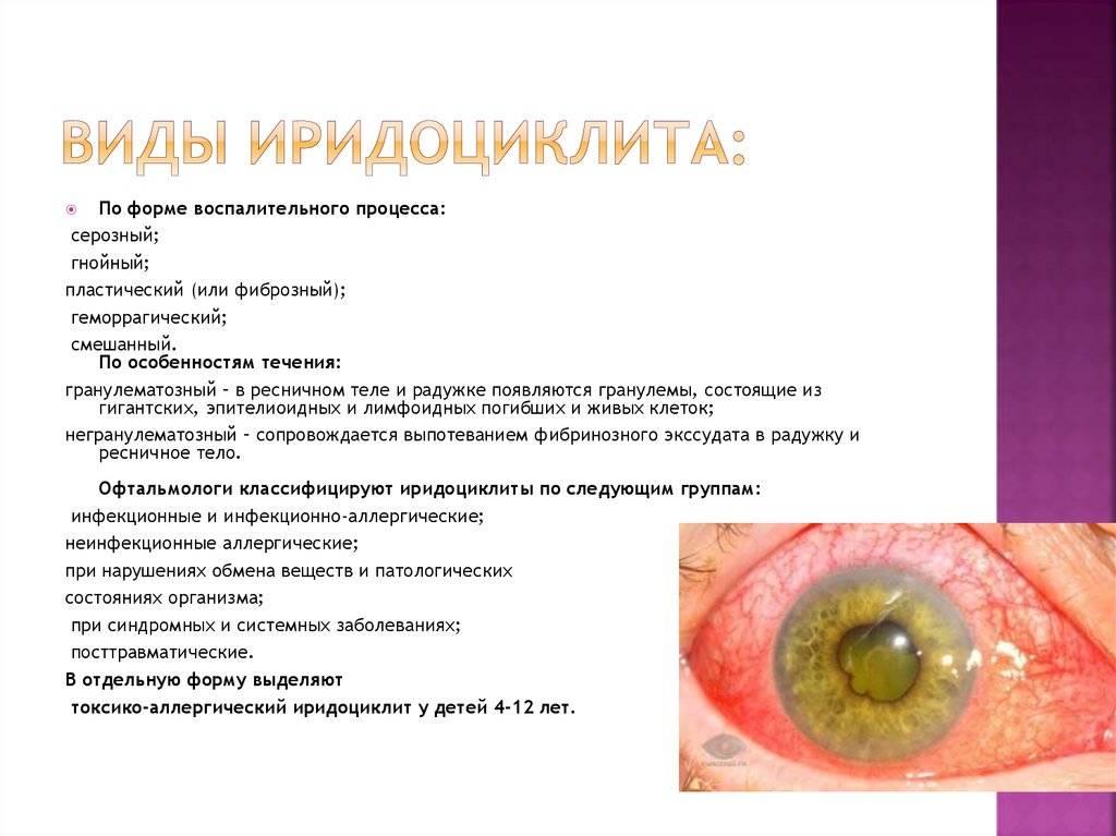 Иридоциклит