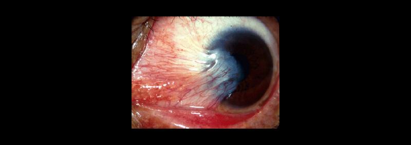 Что такое птеригиум глаза и как его лечить?