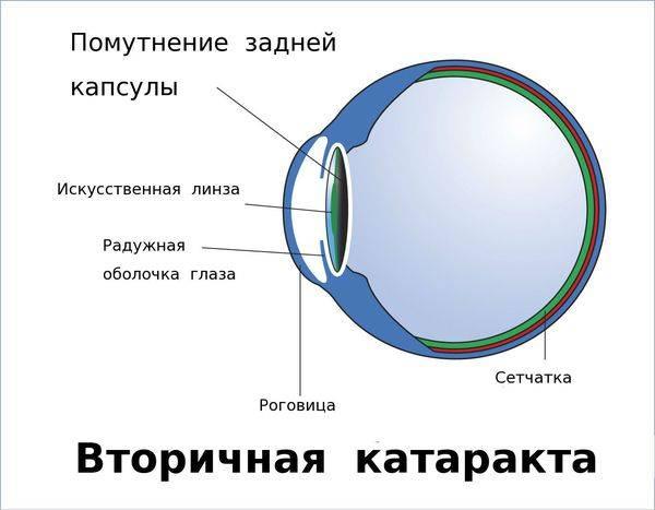 После операции возникла вторичная катаракта? лечение лазером может спасти ситуацию