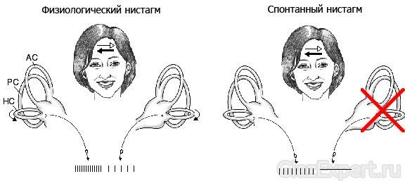 Особенности лечения нистагма горизонтального