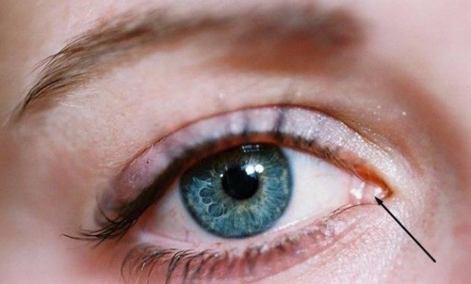 Боль в уголках глаз