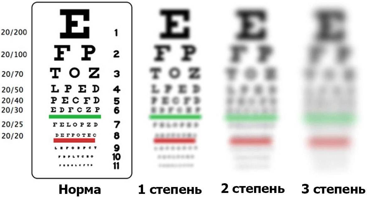 """Зрение минус 1: причины и методы лечения - """"здоровое око"""""""