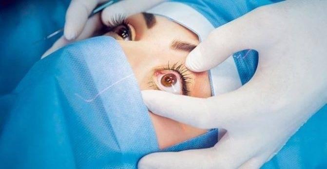 Склеропластика глаз: показания, у детей, по пивоварову, как проходит операция и реабилитация
