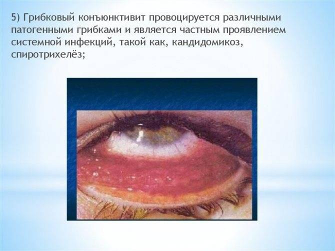 Герпетический конъюнктивит (герпесный): причины, симптомы, лечение, капли, диагностика, прогноз, профилактика, фото