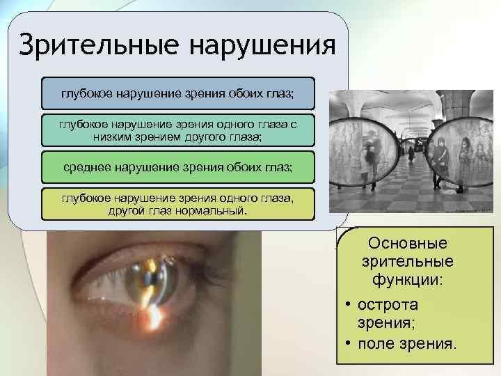 Нарушения зрения | что делать, если нарушилось зрение? | лечение нарушений и симптомы болезни на eurolab