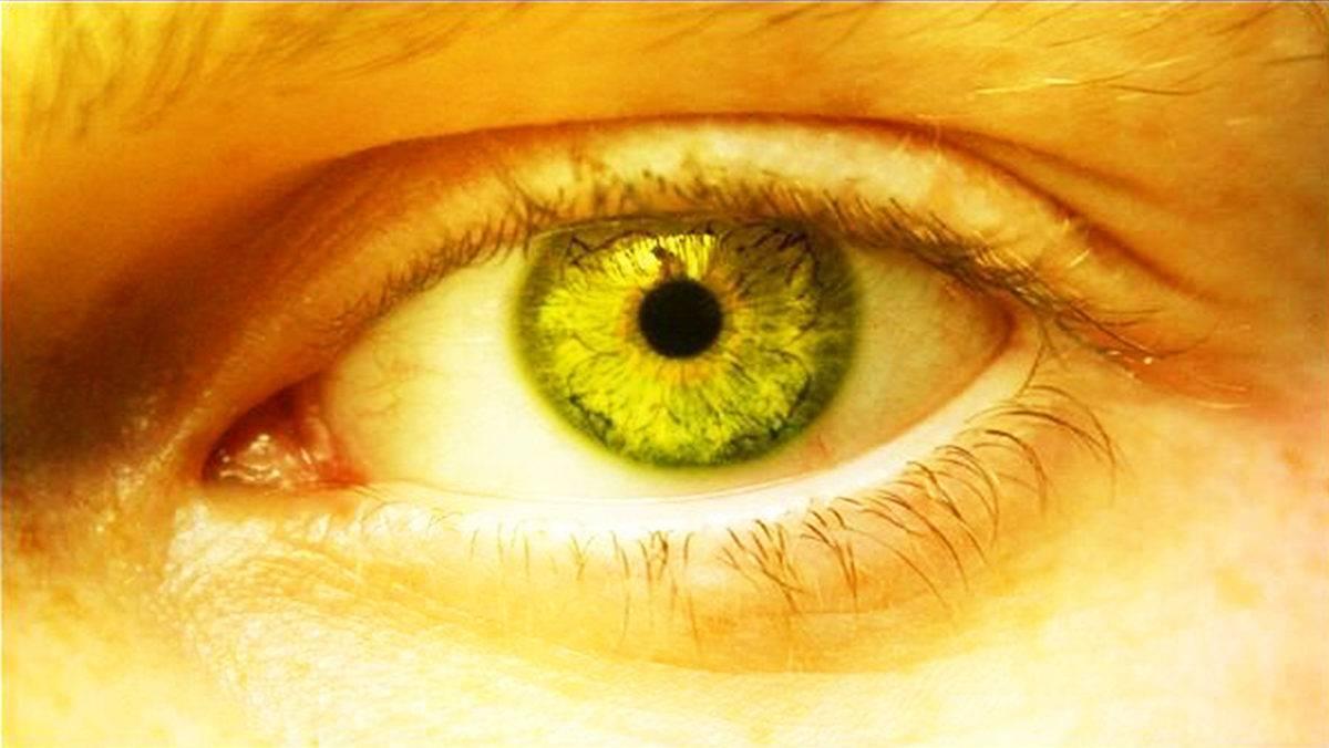 Ксантомы на коже: что это такое, фото, признаки, симптомы, лечение