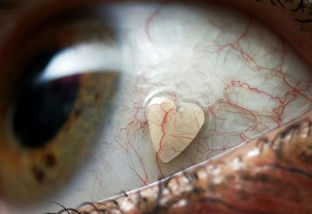 Растет ли глаз на протяжении жизни человека