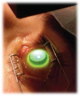 Роговичный кросслинкинг при кератоконусе - показания и противопоказания, возможные осложнения после операции