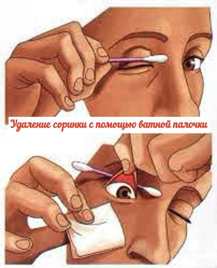 Что делать если в глаз попала соринка и как достать