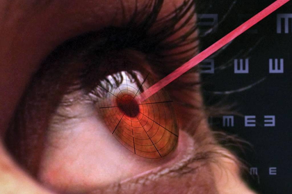 Легко ли живется после лазерной коррекции зрения? ограничения и рекомендации в послеоперационный период