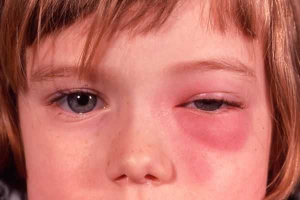 Заболевания глазницы. периостит, флегмона глазницы.