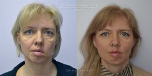 Как восстановить зрение после инсульта: двоение в глазах, лечение потери зрения, прогноз - doktor-ok.com