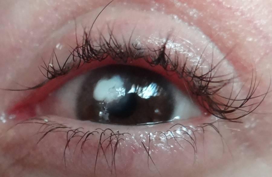 Бельмо на глазу у человека (лейкома): причины и лечение