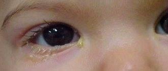 Слезятся глаза по утрам: причины, почему появляются слезы после сна, от чего бывает аллергия, что делать, если есть слезотечение
