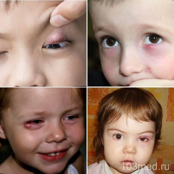 Традиционные и народные способы лечения ячменя на глазу у ребёнка